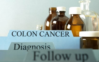 colon cancer awareness image