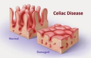 celiac disease damages the small intestine