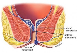 hemorrhoid image illustrating internal and external hemorrhoids