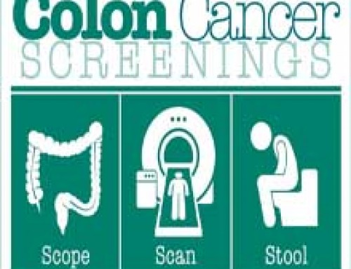 Colon Cancer Home Tests vs Colonoscopy